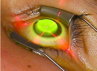 Corneal Collagen Cross-Linking for the Treatment of ...