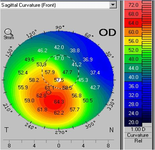 Keratoconus Examination, NJ, Corneal Topography, NYC, Optical Response ...